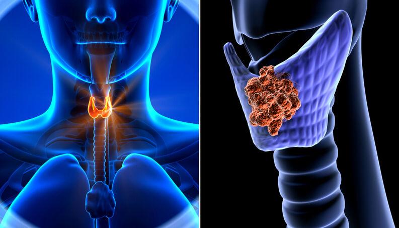 Sinais do mau funcionamento da tireoide - Bernadete Alves