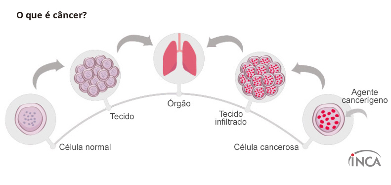 Acreditar Oncologia D'Or chega à Brasília - Bernadete Alves