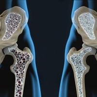 Osteoporose: a inimiga silenciosa da mulher