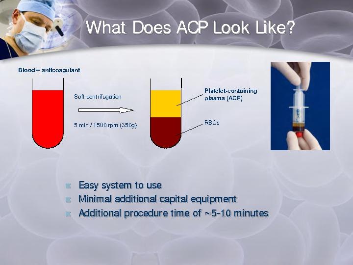 Arthrex ACP ( PRP ) Therapy – BEROVA KLİNİK - Ortopedi ve