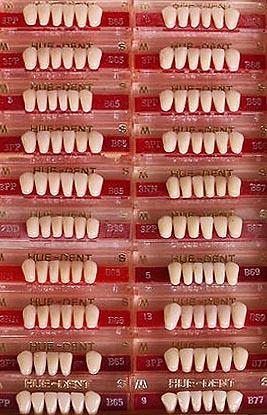 alte Zahnmodelle