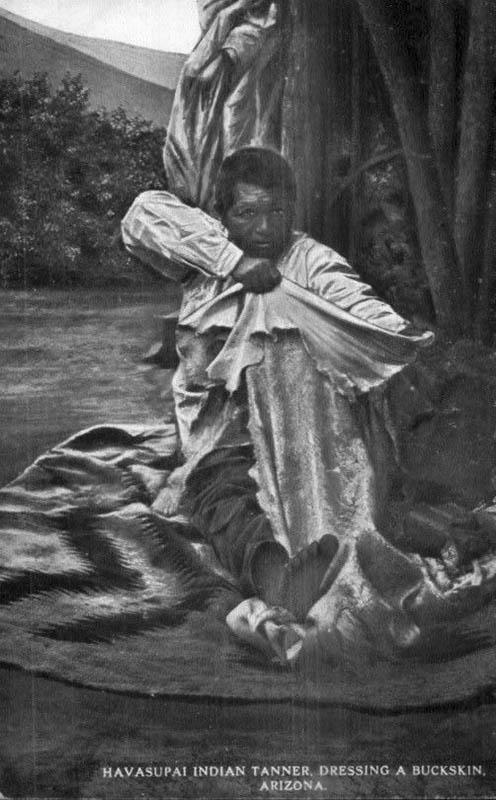 sw-AK: Mann dehnt Lederhaut