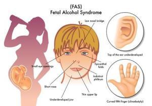 Foetaal alcohol syndroom