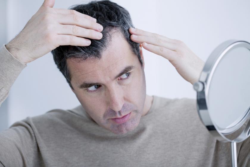 هل القلق والتوتر يزيد من شيب الشعر؟