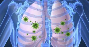 Tüberküloz Tedavisinde Beslenme Nasıl Olmalı?