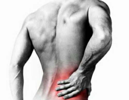 back-pain-sciatica-physiotherapy-in-covent-garden