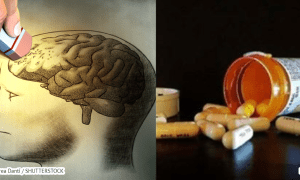 stop using these 20 medications because they cause memory loss hangover cure - Stop Using These 20 Medications Because They Cause Memory Loss – Hangover Cure