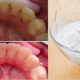 4 steps to whiten yellow teeth and remove plaque and tartar buildup hangover cure - 4 Steps To Whiten Yellow Teeth And Remove Plaque And Tartar Buildup – Hangover Cure