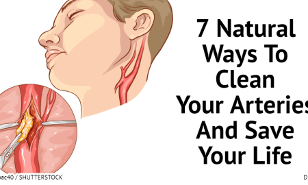 7 natural ways to clean your arteries and save your life hangover cure - 7 Natural Ways To Clean Your Arteries And Save Your Life – Hangover Cure