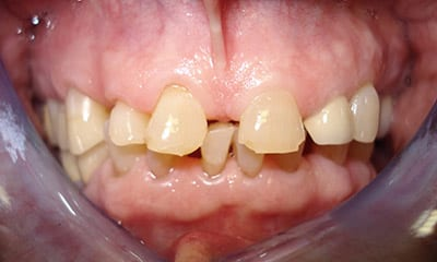 Short teeth with gaps before dental reconstruction