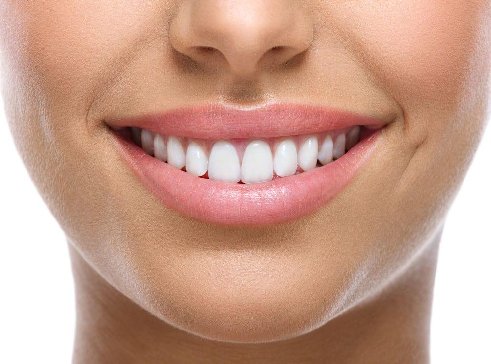 Teeth Whitening for Bonded Teeth
