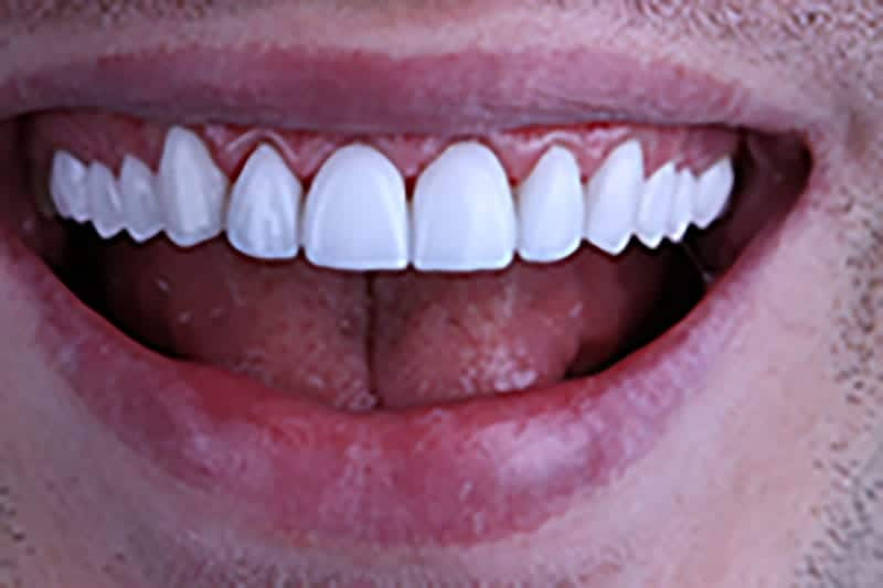 Enhance Your Smile with Porcelain Veneers in Beverly Hills