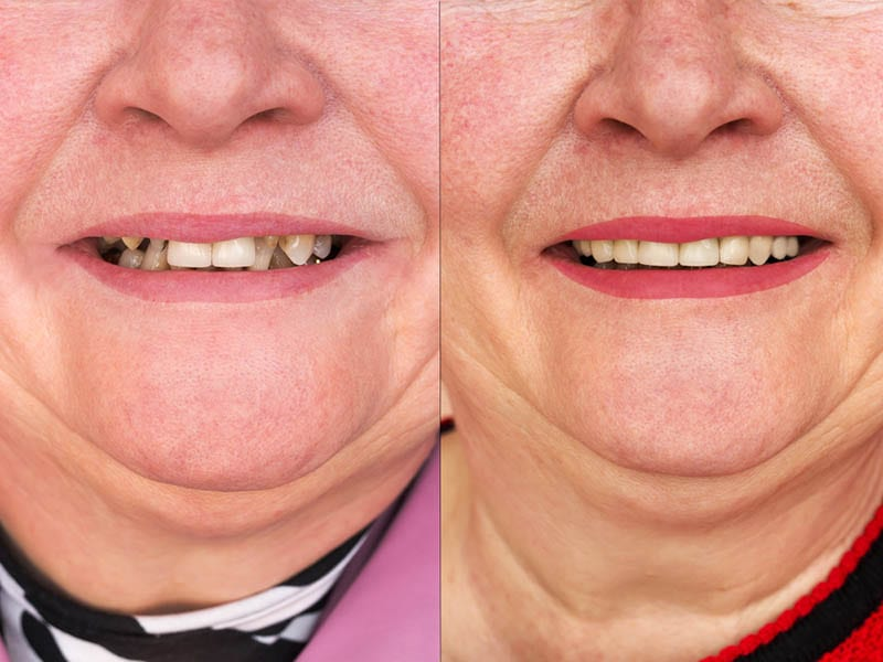 A Full Mouth Reconstruction in Los Angeles