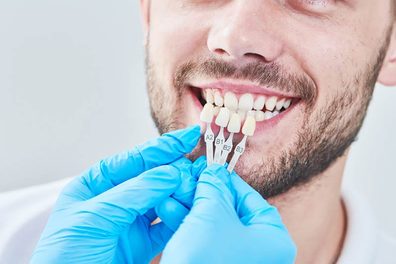 Complete Dental Reconstruction in Los Angeles