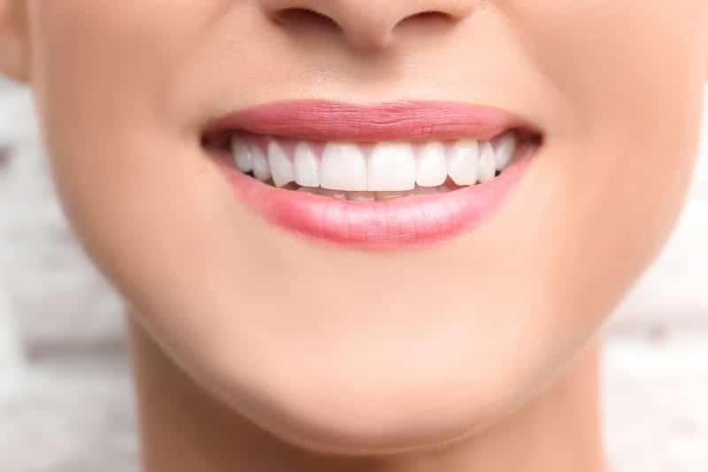 All About Dental Bonding Dental Bonding in Beverly Hills