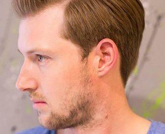 Comment comprendre que les cheveux tombent: symptômes #recedinghairline #taper #sidepart