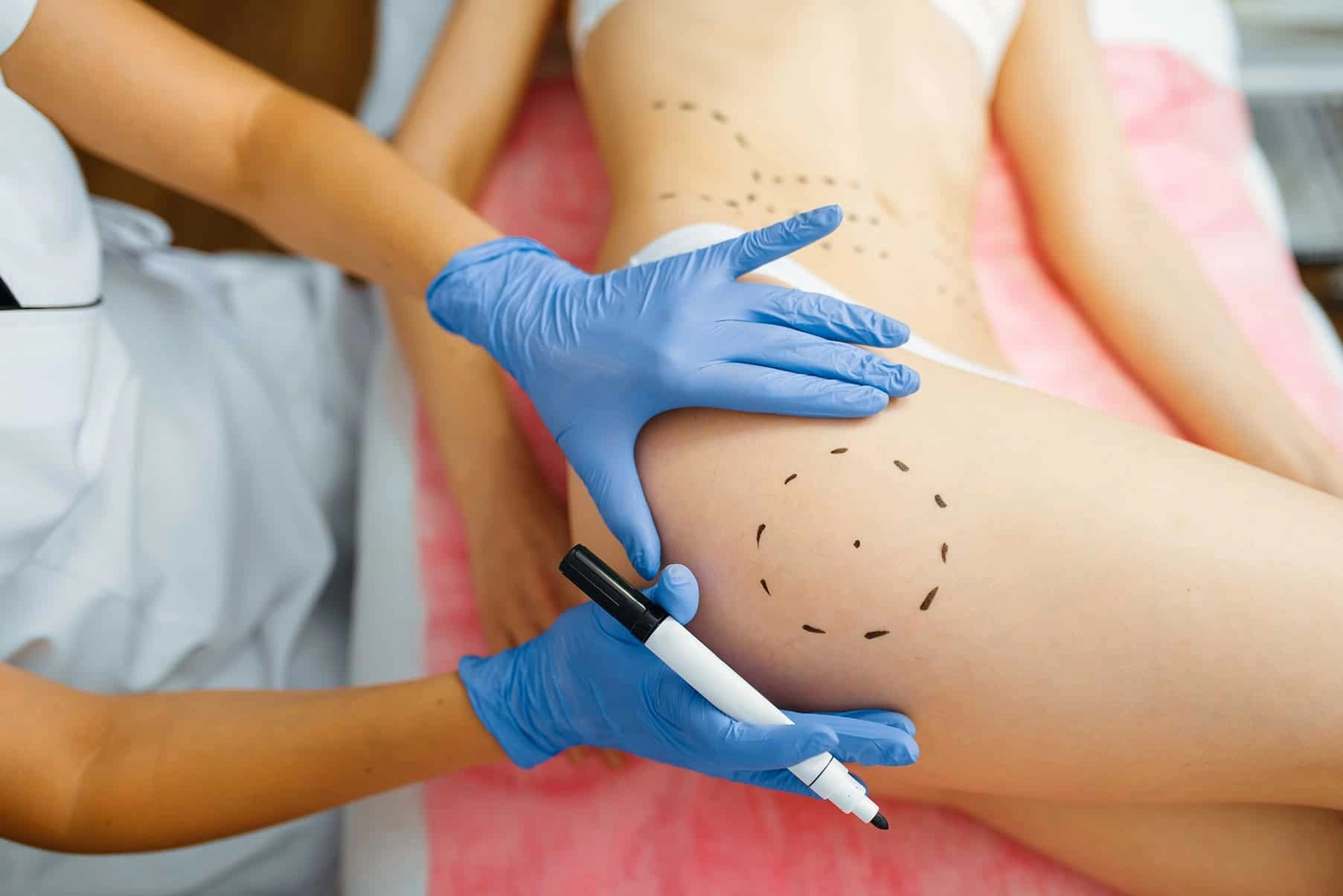 liposuction advice with bestcosmeticsurgeons site