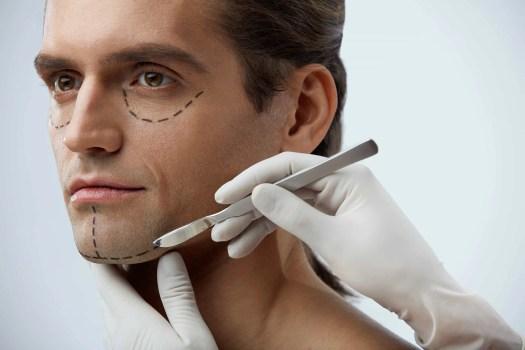 man eyelid surgery