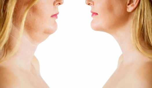 Double Chin Treatment In 2020 Kybella V Coolsculpt The Race Is On