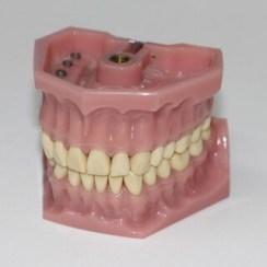 Bild von einer Zahnprothese