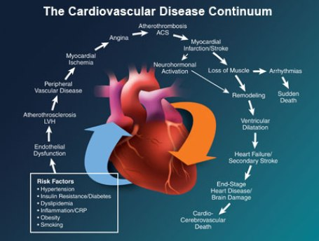 Cardiovascular Disease, Major Causes of This Risky Health Condition