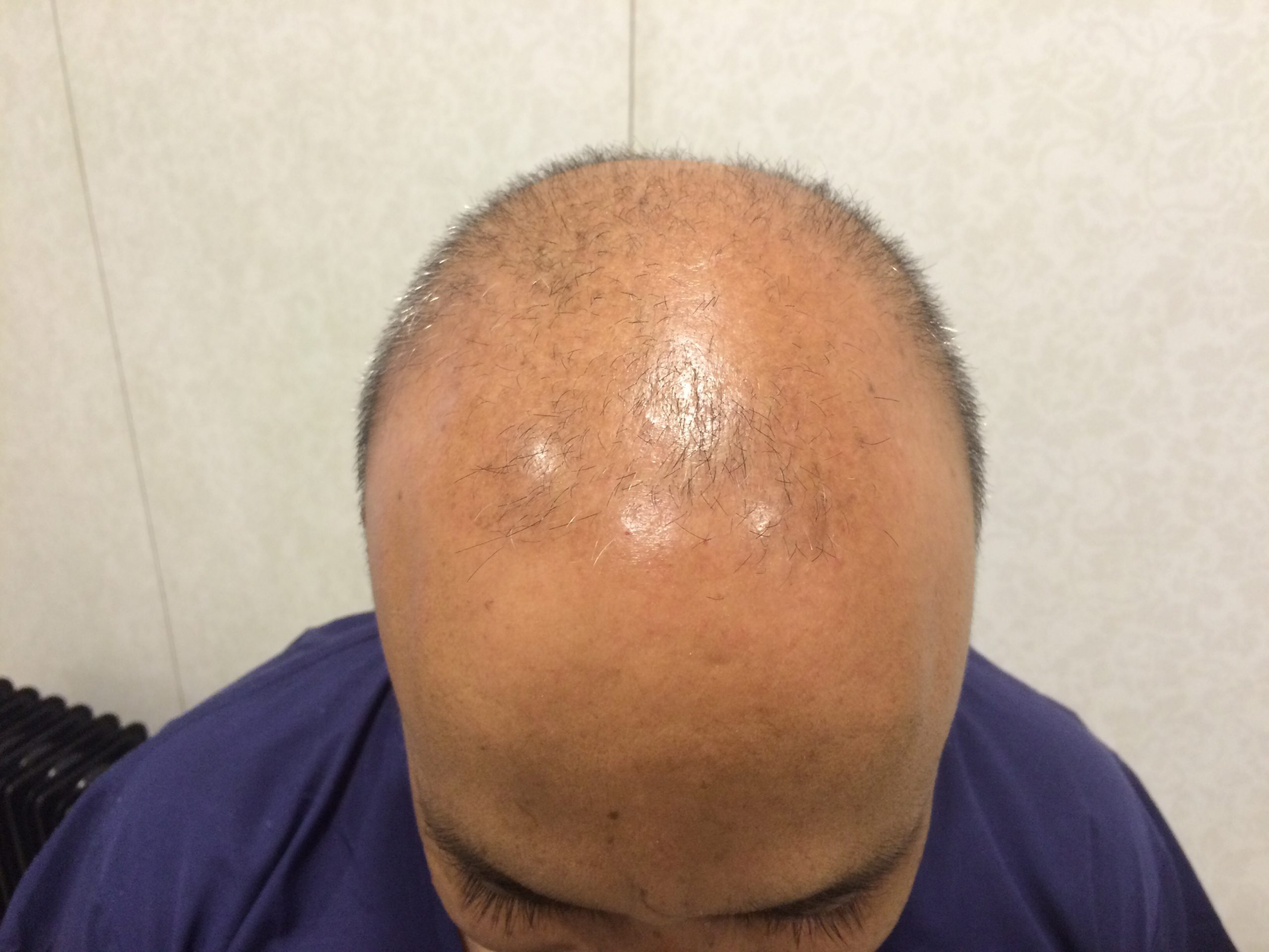Indian names for FUE Hair Transplant
