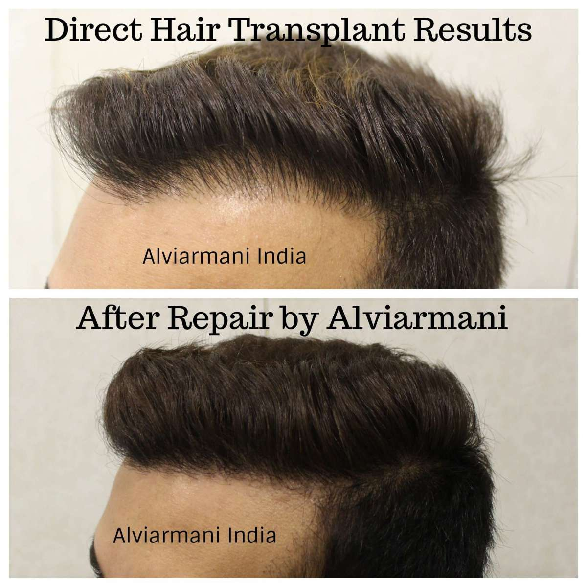 DHI- Direct hair Transplant results, Why Your First hair transplant should  always be the Best, Dr.Arihant Surana