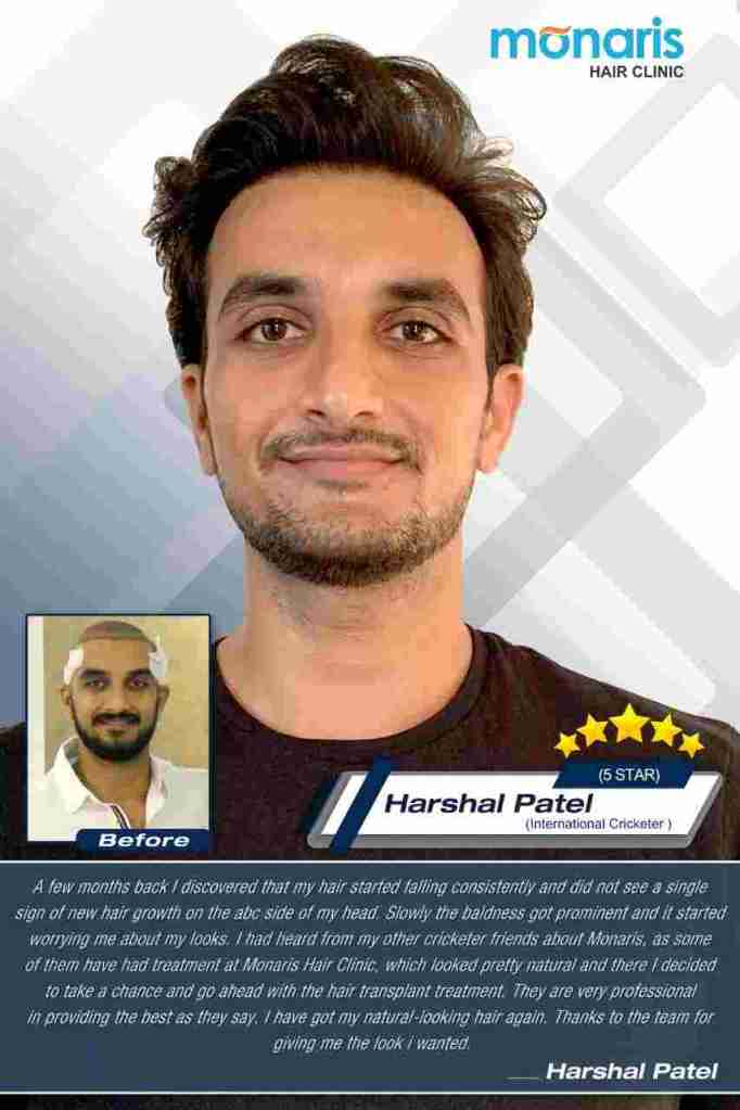 Best Hair Transplant in India, Home, Dr.Arihant Surana