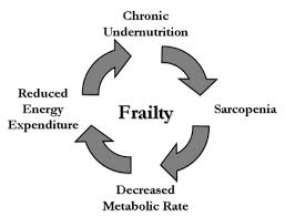Prevention Of Frailty Best In Corporate Health