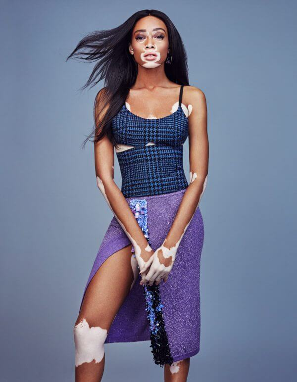 Winnie Harlow awoesem pictures