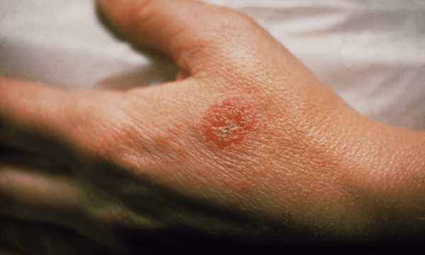 Best Ways To Defeat Eczema
