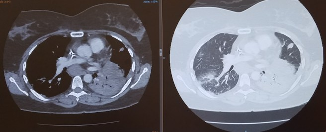 CT scan images