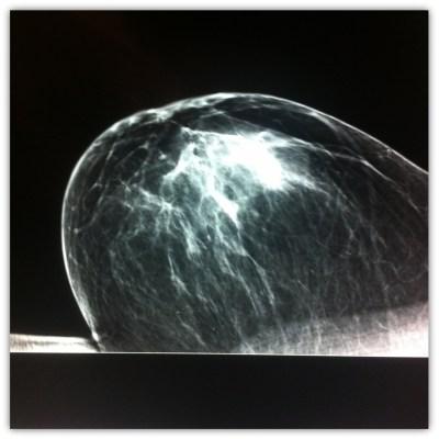 Mammogram3