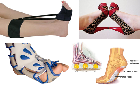 Plantar Fasciitis: How The Hell Do I Get Rid of This