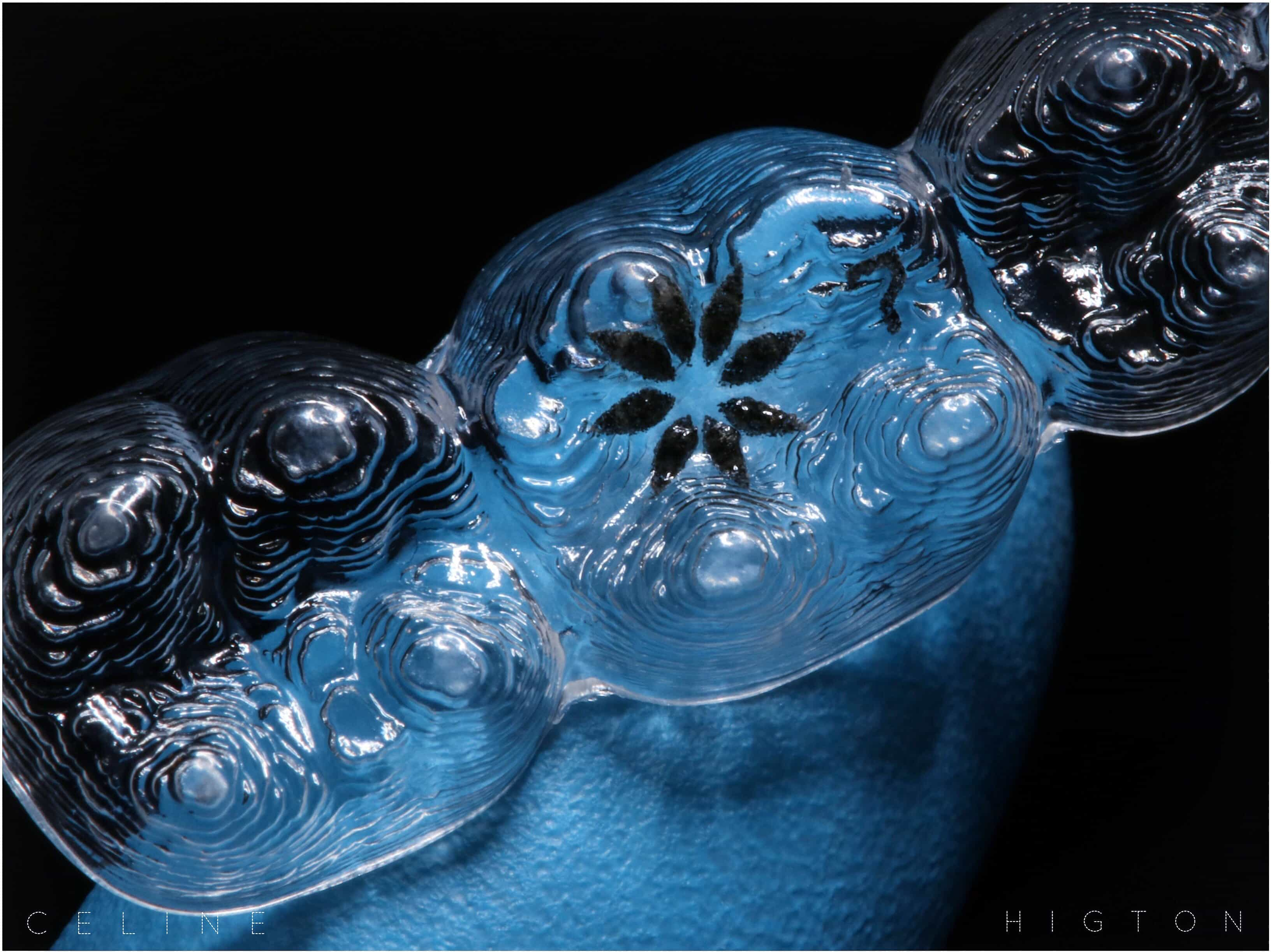 Photograph Of Invisalign Aligner By Dr Celine Higton At Beverley Dental Raynes Park London