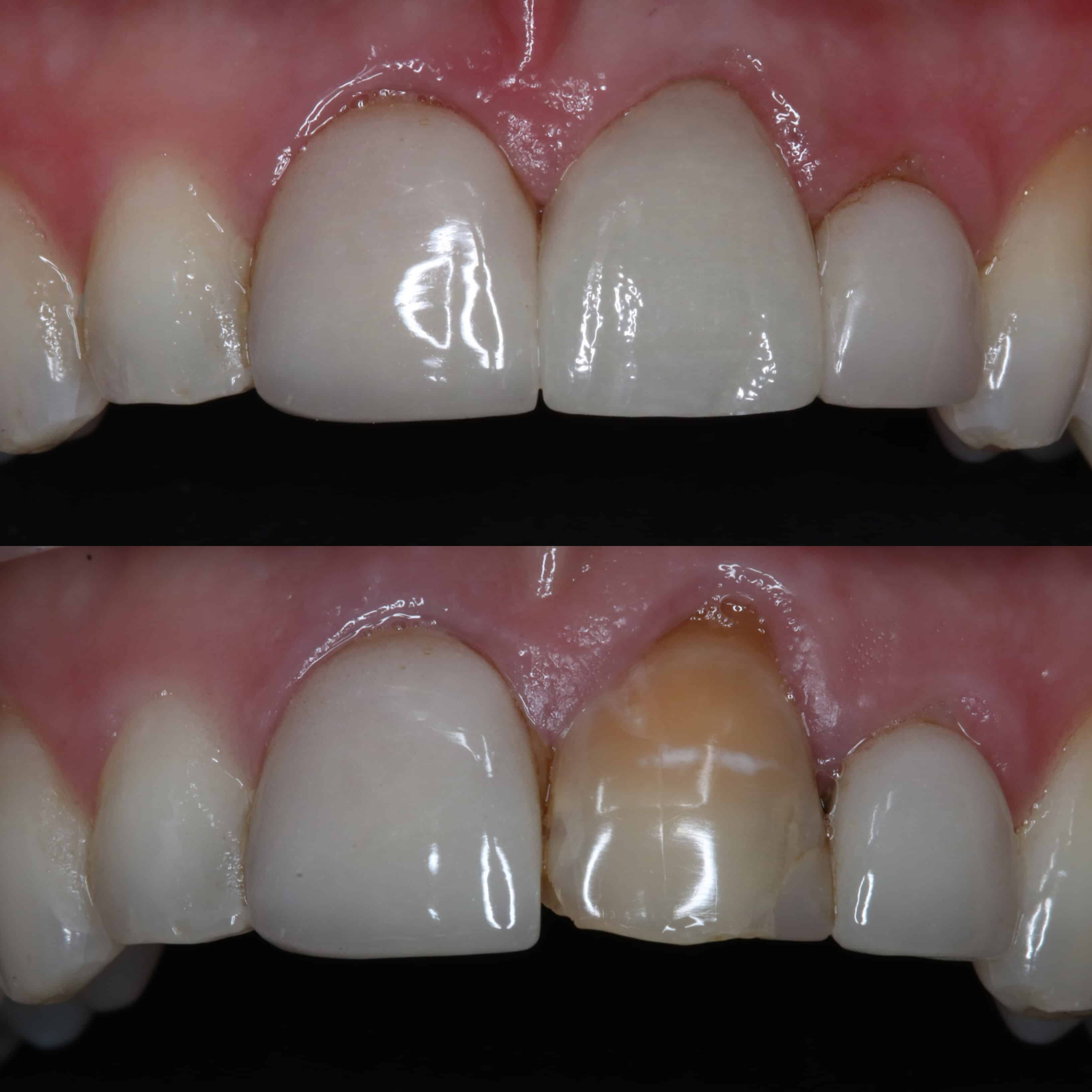 Anterior Crown By Dr Celine Higton At Beverley Dental Raynes Park London