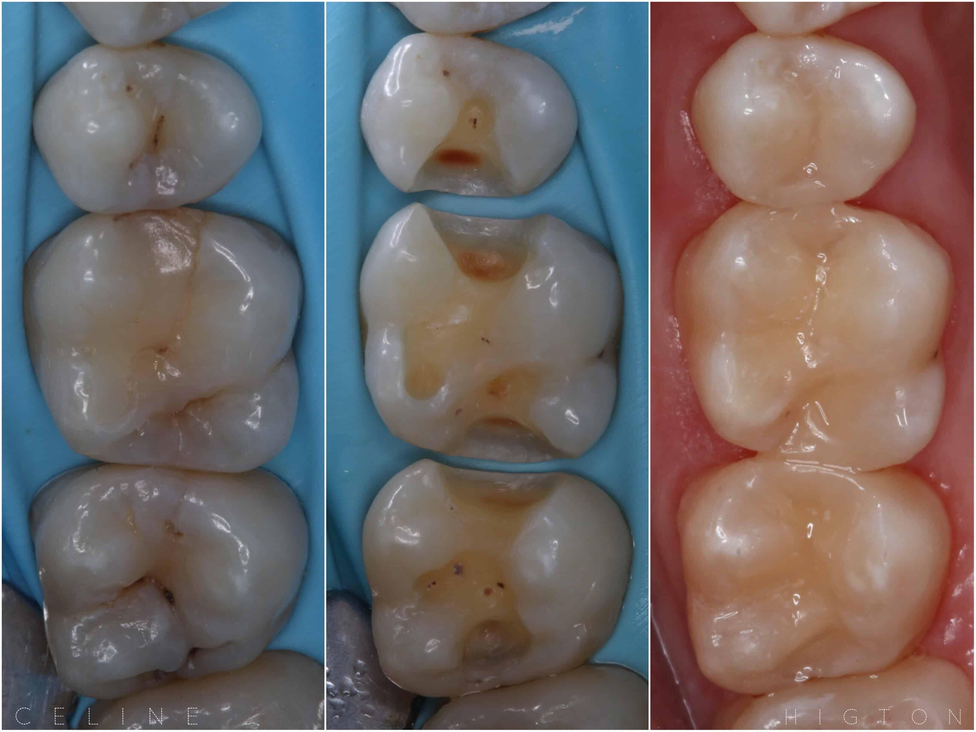 Tooth Filling By Dr Celine Higton At Beverley Dental Raynes Park London