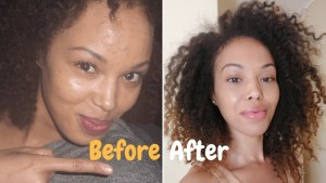 acne treatment, robyn ruth thomas, be whole, natural acne remedy