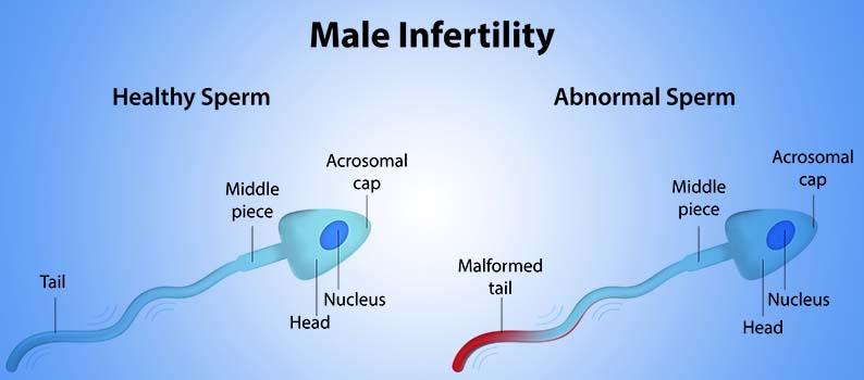 kvinnelig ejakulering hormoner i kroppen