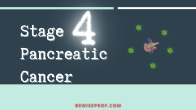 Photo of Stage 4 Pancreatic Cancer