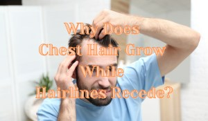 Why Does Chest Hair Grow While Hairlines Recede?