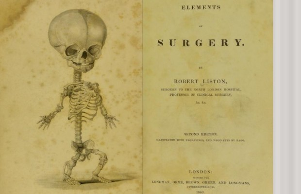 elements of surgery 1840
