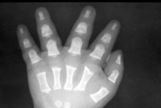 hand-Trident-3