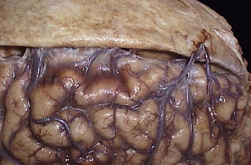 Image taken from http://library.med.utah.edu/WebPath/CNSHTML/CNS315.html