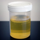 Urine Sample source: Wikipedia