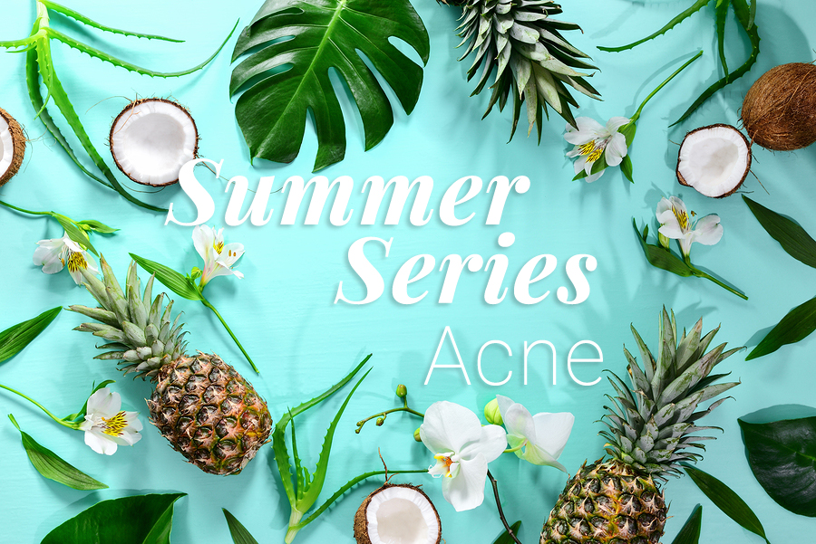 Summer-Series-Acne.jpg?fit=900%2C601&ssl=1