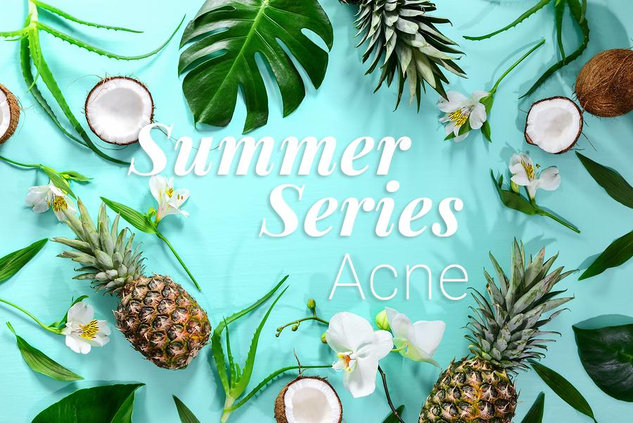 Summer-Series-Acne.jpg?fit=900%2C601&ssl=1