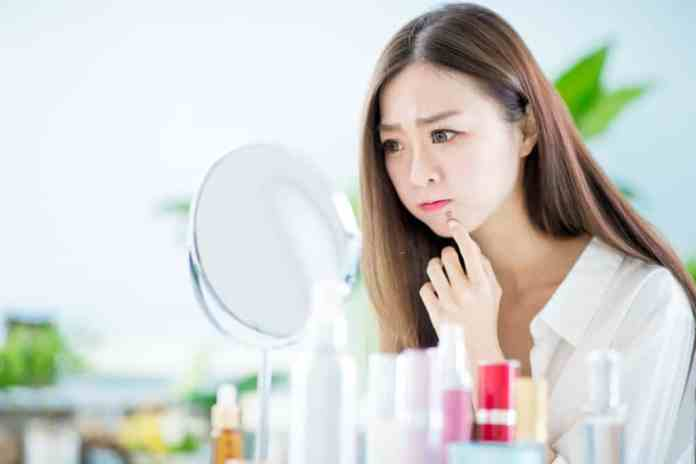 how to get rid of whiteheads around lips