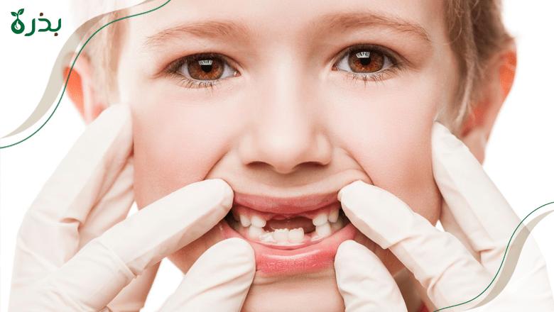 العناية بأسنان الطفل اللبنية Bezrah بذرة