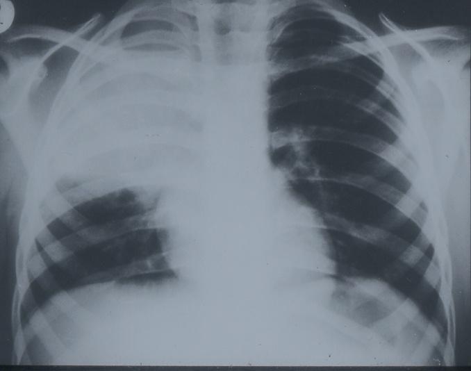 Пневмококова пневмония